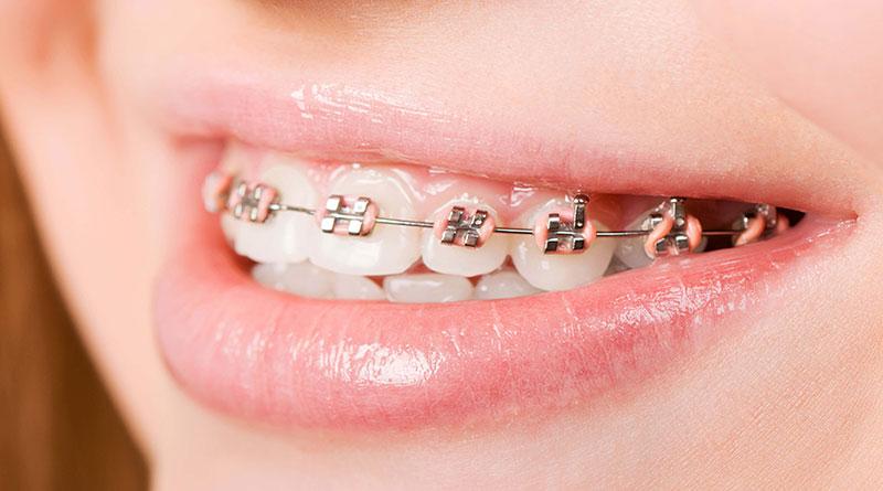 chi phí niềng răng tại bệnh viện răng hàm mặt