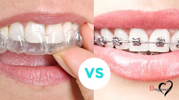 niềng răng không mắc cài bao nhiêu tiền