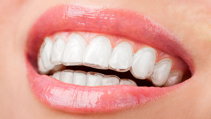 niềng răng mắc cài trong suốt giá bao nhiêu
