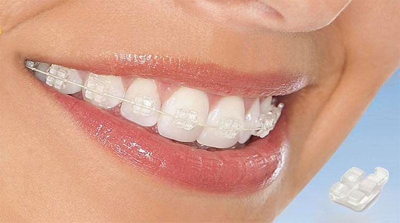 các hình thức niềng răng