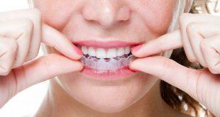 Phương pháp niềng răng invisalign 1