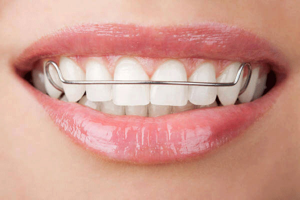 Kết quả hình ảnh cho hàm duy trì sau niềng răng