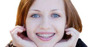 tâm sự niềng răng