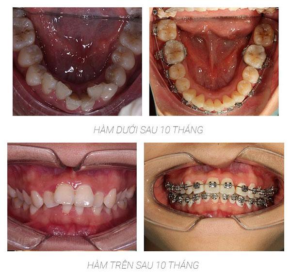 Cảm nhận sau 10 tháng niềng răng