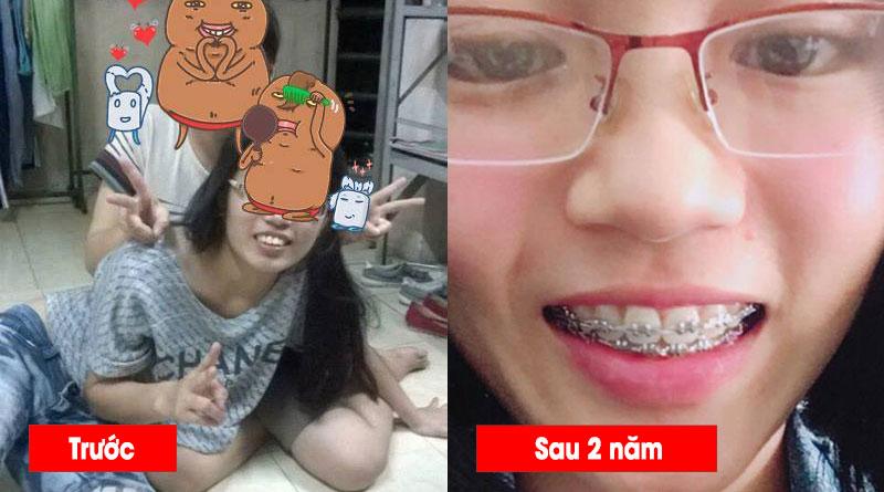 Niềng răng có đẹp hơn không (4)