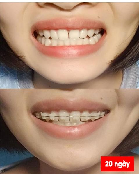 Niềng răng có đẹp hơn không (2)