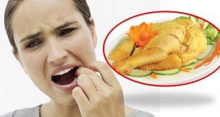 Niềng răng có nên ăn thịt gà không