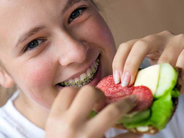 Niềng răng có khó ăn không?