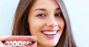 Niềng răng mắc cài bằng kim loại có tốt không?