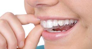 Niềng răng không mắc cài có tính thẩm mỹ cao