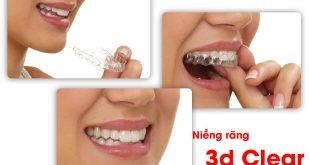 Niêng răng 3D Clear là gì