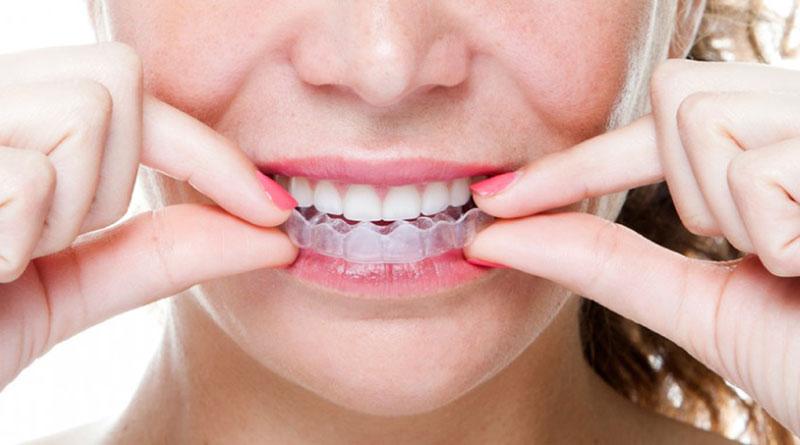 phương pháp niềng răng Invisaglin là gì