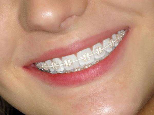 niềng răng mắc cài sứ giá bao nhiêu