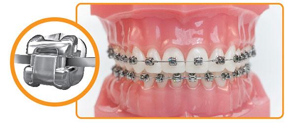 chi phí niềng răng tại bệnh viện răng hàm mặt 5
