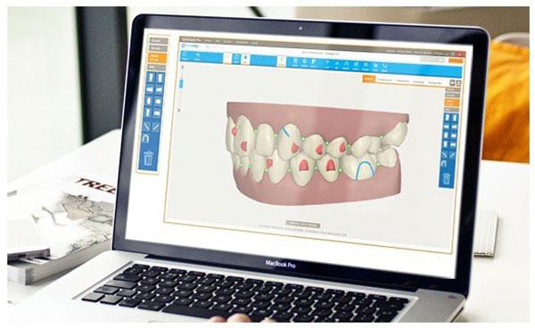 Phương pháp niềng răng invisalign là gì 2