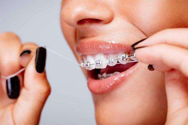 cách vệ sinh răng miệng cho người niềng răng