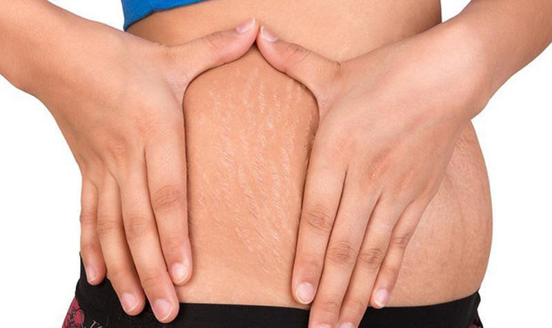 Điều trị rạn da sau sinh