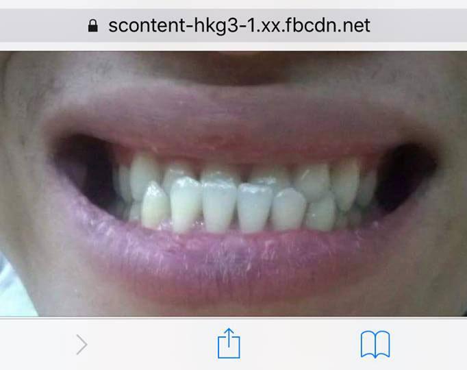Kiến thức niềng răng