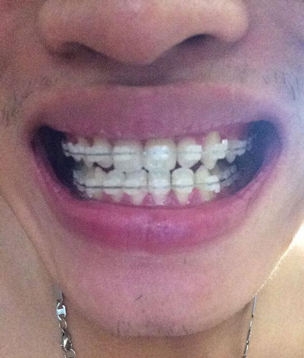 chia sẻ kiến thức niềng răng 2