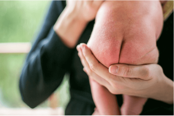 Bệnh hăm tã là hiện tượng phổ biến ở trẻ