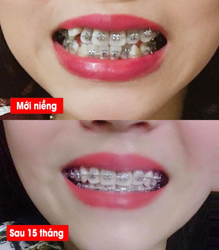Niềng răng có đẹp hơn không (3)