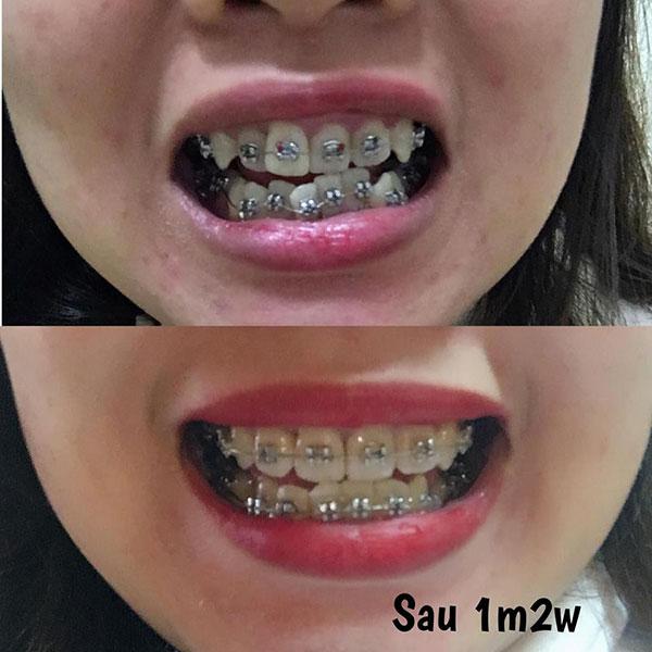 Niềng răng có đẹp hơn không (1)