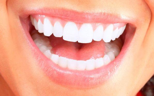 Niềng răng để có một nụ cười tưi đẹp, tự tin