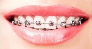 Niềng răng bằng mắc cài kim loại có tốt không