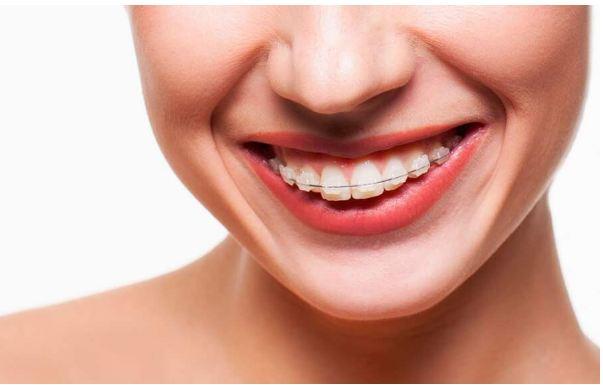 Những điều cần biết về niềng răng mắc cài bằng pha lê