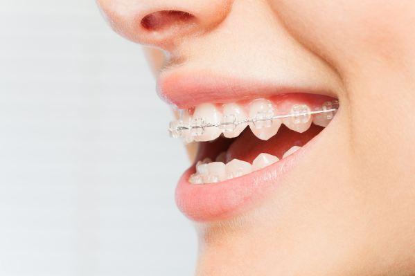 Người xung quanh sẽ không nhận ra bạn đang niềng răng với mắc cài bằng pha lê