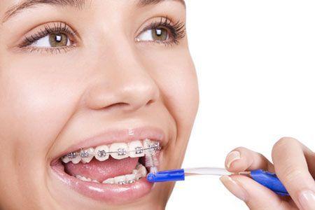 Niềng răng không mắc cài dễ dàng vệ sinh