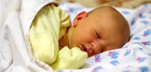 Biểu hiệu của bệnh vàng da gặp ở trẻ