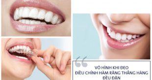 Niềng răng không mắc cài mất bao lâu?
