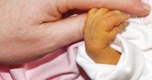 Dấu hiệu của bệnh vàng da ở trẻ?