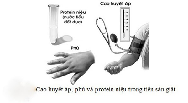 Protein niệu