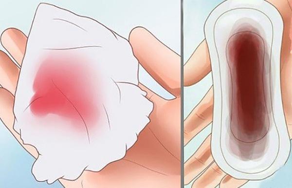 (Máu báo thai thường có màu hồng nhạt)