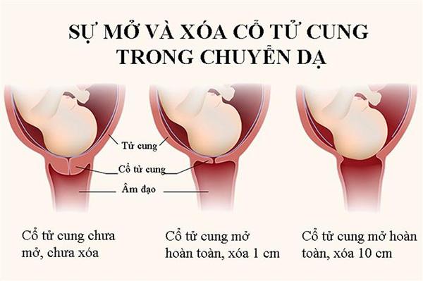 Cổ tử cung mở bao nhiêu thì sinh?